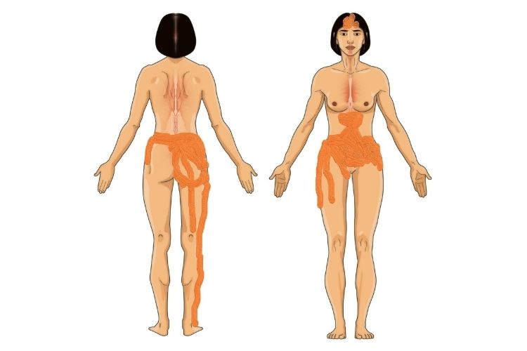 Endometriosis pain map