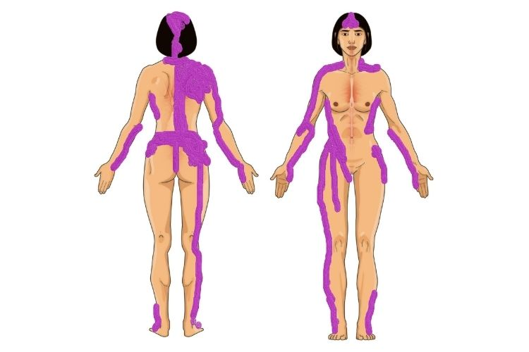 Fibromyalgia pain map