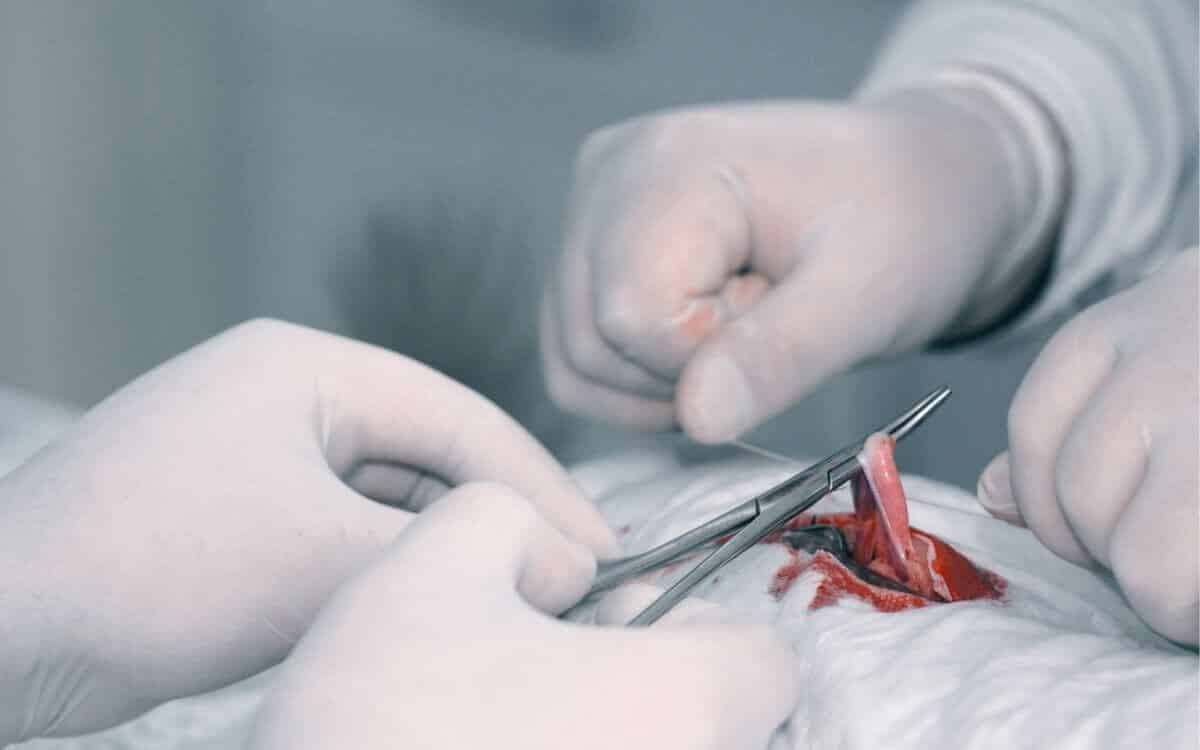 Hysterectomy does not help 1